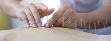 Supremo Tribunal Federal determina que somente médicos podem praticar  acupuntura